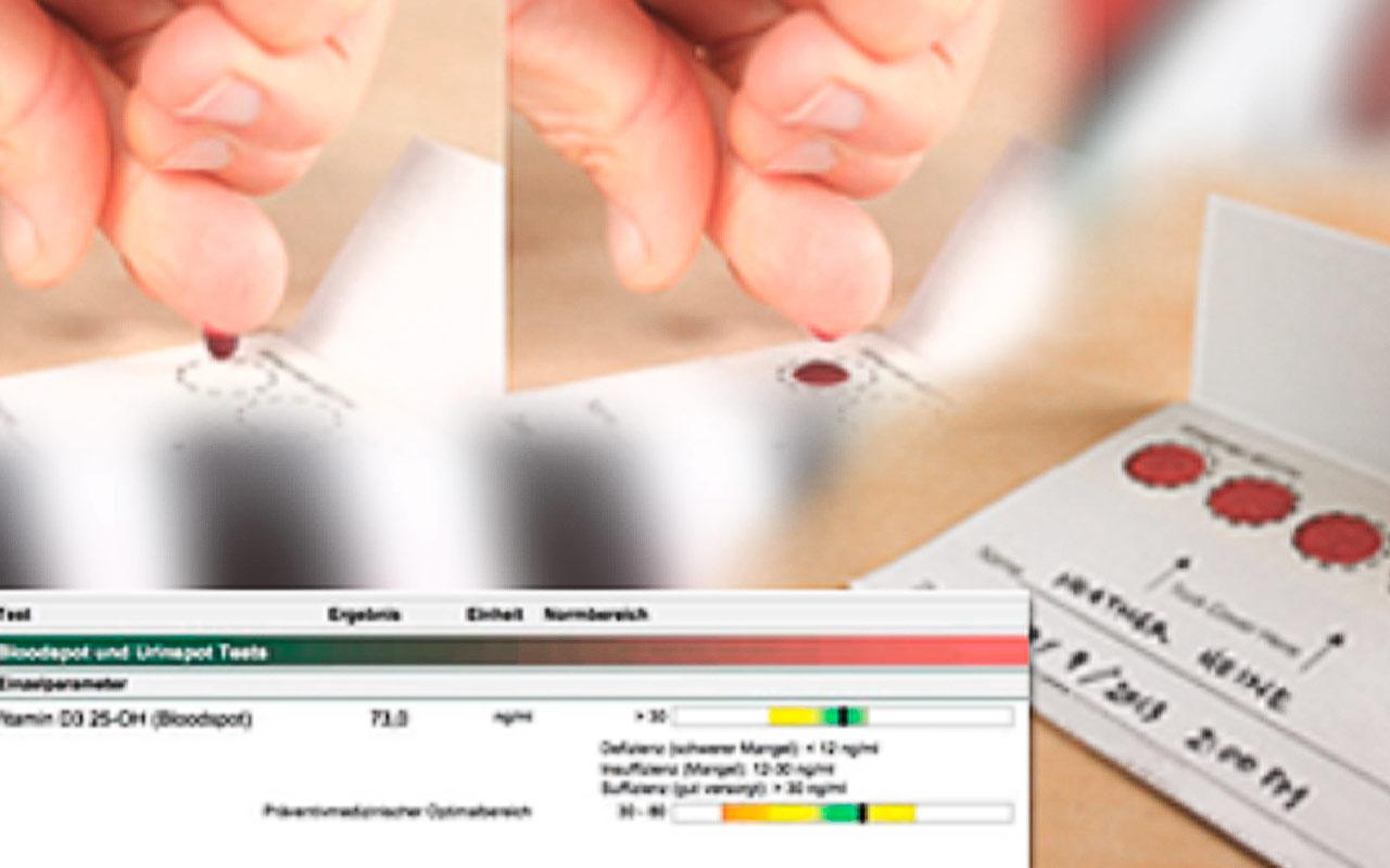 Vitamin D3 – Laborwert praktisch nutzbar machen